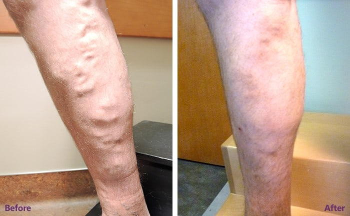 Qualities of a Good Spider Vein Dr Near Me in Houston, TX
