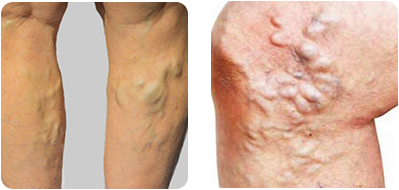 Step-by-Step Overview of Varicose Vein Treatment in Texas — According to Vein Clinic