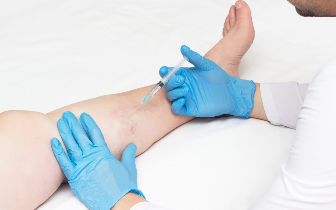 What's the Best Plan for Vein Therapy in Houston?