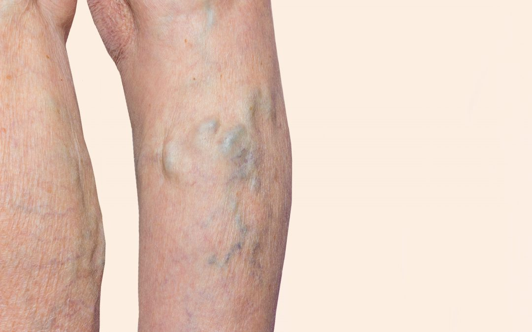A Step-by-Step Guide to Vein Therapy Near Me in Texas