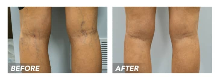 What are the Best Treatments for Vein Relief in Houston?