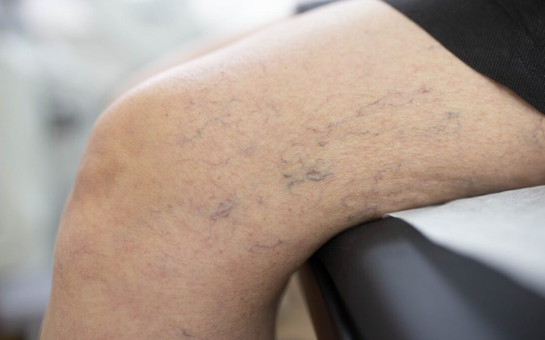 Where Can I Find a Good Vein Dr. Near Me River Oaks?